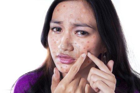 Photo pour Adolescente enlever bouton sur sa joue en le touchant avec ses doigts, isolé sur blanc - image libre de droit