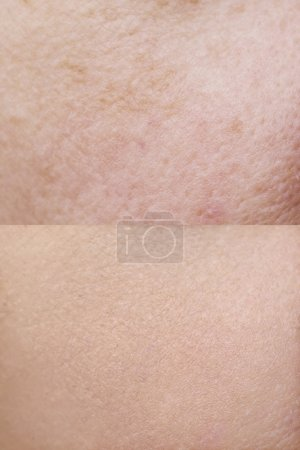 Photo for The skin close-up before and after treatment - Royalty Free Image