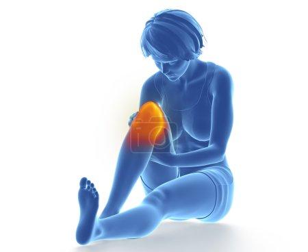 Female knee injured