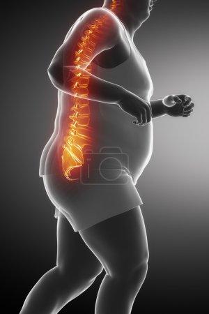 Fat Jogging man with backache