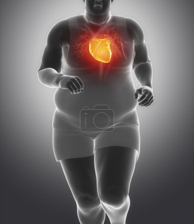 Obese man with heart injury