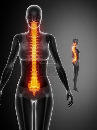 SPINE  bones scan