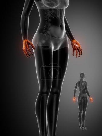 WRIST bones anatomy scan
