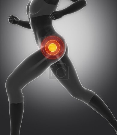 Photo for Running woman with Focused on hip in sports injuries - Royalty Free Image
