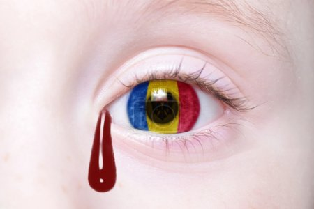 human's eye with national flag of moldova with bloody tears.