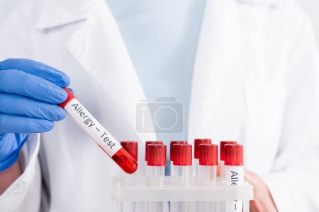 Photo for Cropped view of doctor holding test tubes with allergy test lettering - Royalty Free Image