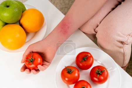 Cropped view of woman with allergy reaction holding tomato near fruits