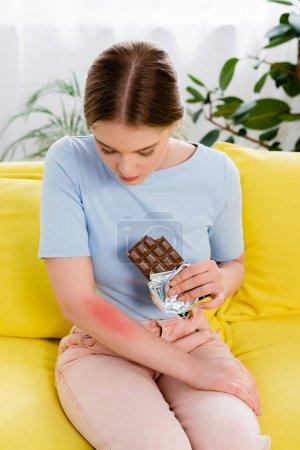 Photo pour Jeune femme tenant une barre de chocolat et regardant la réaction allergique sur le bras - image libre de droit