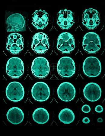 CT and MRI of  skull