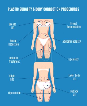 Plastic surgery  body correction vector illustration. Lifting plasty liposuction, cellulite removal and fat lose