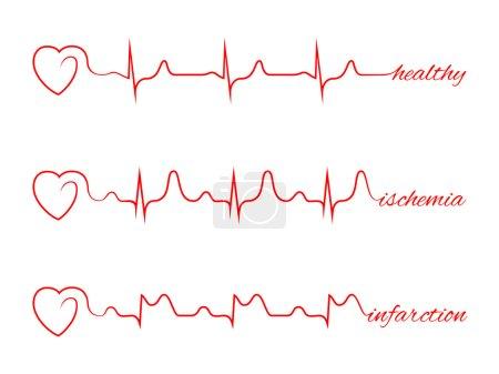 Heart beats various cardiogram vector set