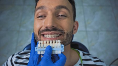 overhead view of smiling man near dentist holding teeth color palette