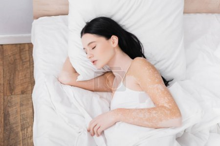 top view of young woman with vitiligo sleeping in bed