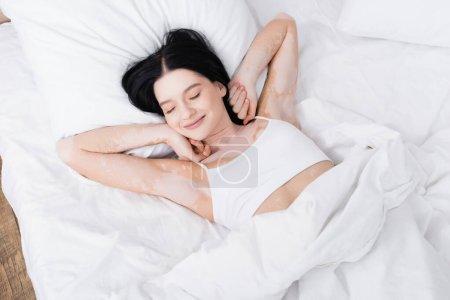 Photo pour Vue du dessus de la jeune femme paresseuse avec vitiligo couché sur le lit - image libre de droit
