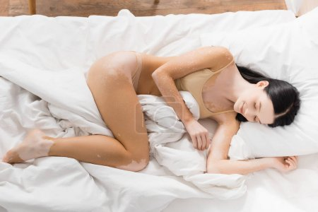Photo pour Vue de dessus de jeune femme heureuse avec vitiligo couché sur le lit - image libre de droit
