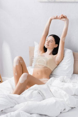 young cheerful woman with vitiligo stretching in bedroom