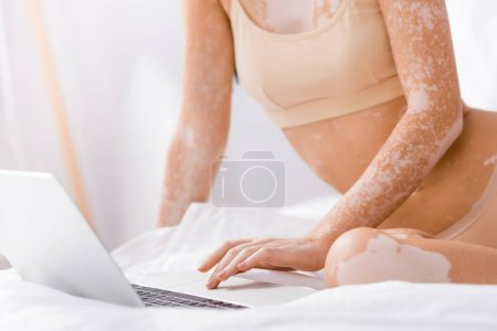 Photo for Cropped view of freelancer with vitiligo using laptop in bedroom - Royalty Free Image
