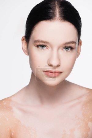 Photo pour Portrait de jeune belle femme avec vitiligo isolé sur blanc - image libre de droit