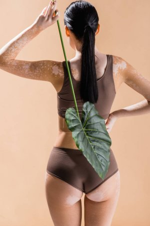 Photo for Back view of young beautiful woman with vitiligo posing with green leaf isolated on beige - Royalty Free Image