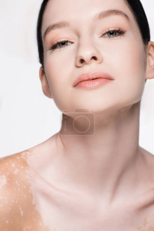 portrait of young beautiful woman with vitiligo isolated on white