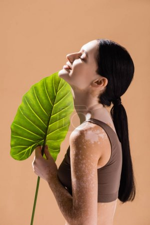 Photo for Side view of smiling young beautiful woman with vitiligo posing with green leaf isolated on beige - Royalty Free Image