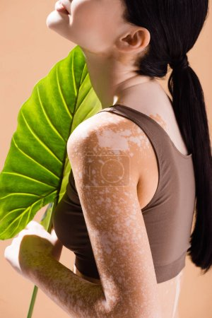 Photo for Partial view of young beautiful woman with vitiligo posing with green leaf isolated on beige - Royalty Free Image