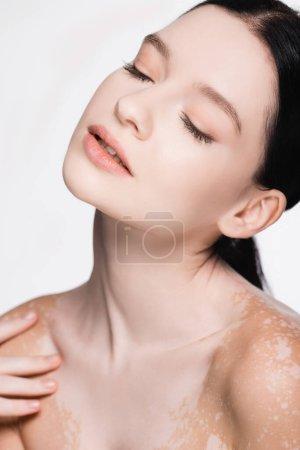 junge schöne Frau mit Vitiligo und geschlossenen Augen isoliert auf weiß