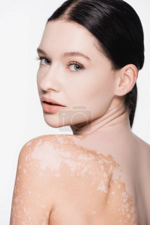 young beautiful woman with vitiligo isolated on white