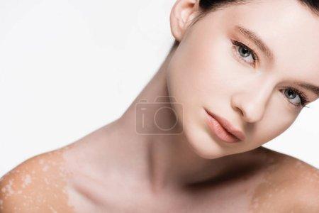 Photo pour Jeune belle femme avec vitiligo isolé sur blanc - image libre de droit