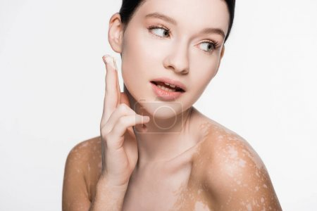 Photo for Young beautiful woman with vitiligo applying cosmetic cream isolated on white - Royalty Free Image