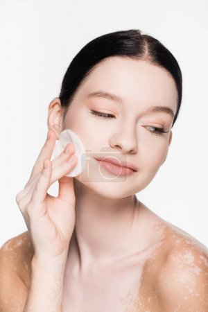 young beautiful woman with vitiligo cleansing face with cotton pad isolated on white