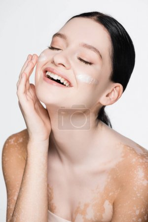 smiling young beautiful woman with vitiligo and facial cream on cheeks isolated on white