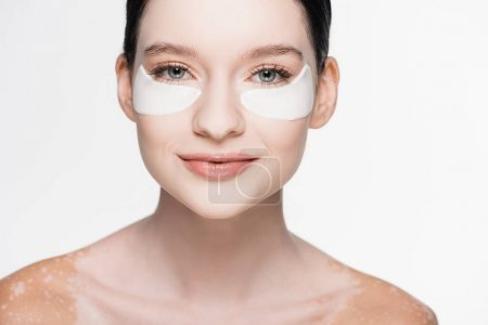 young beautiful woman with vitiligo and eye patches on face isolated on white