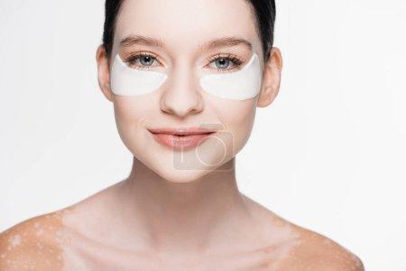 joven hermosa mujer con vitiligo y parches en los ojos en la cara aislado en blanco