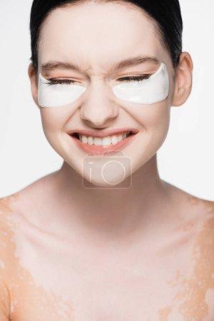 lächelnde junge schöne Frau mit Vitiligo und Augenklappen im Gesicht isoliert auf weiß