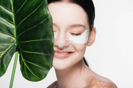 sonriente joven hermosa mujer con vitiligo y parches en los ojos en la cara cerca de hoja verde aislado en blanco