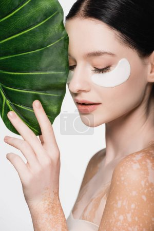 young beautiful woman with vitiligo and eye patches on face near green leaf isolated on white