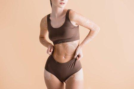 vue recadrée de jeune belle femme avec vitiligo posant en sous-vêtements isolés sur beige