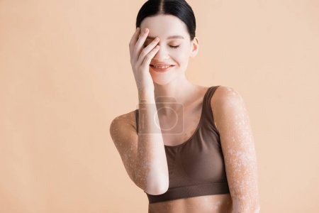smiling young beautiful woman with vitiligo posing in underwear isolated on beige