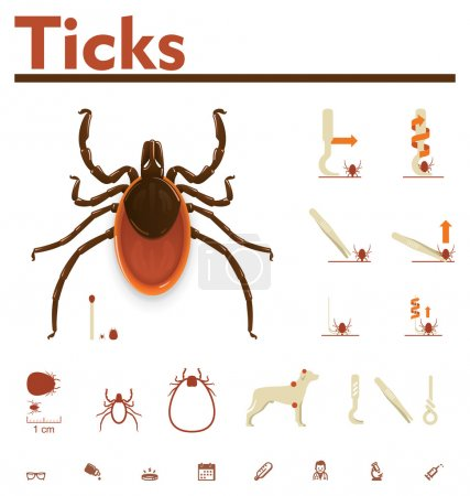 Vector image of tick and removal process...