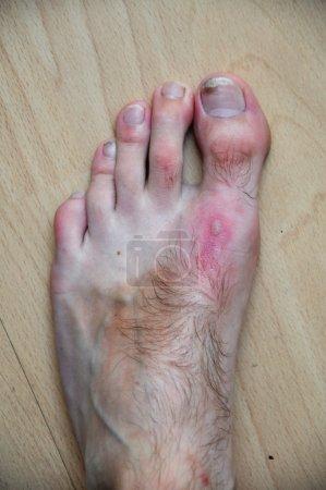 Phytophotodermatitis, cutaneous phototoxic skin inflammatory eru