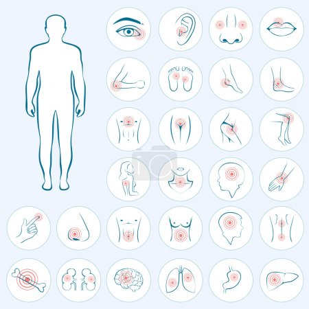 Illustration for Vector human anatomy, body pain, medical illustration - Royalty Free Image