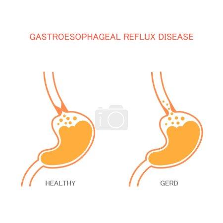 reflux  disease,