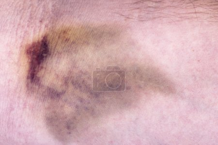 Closeup on a bruise