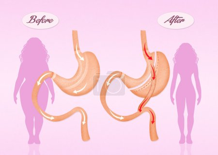 Illustration of before and after gastric bypass su...