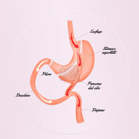 gastric bypass to reduce stomach