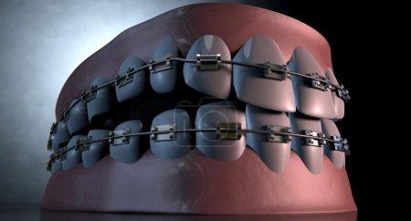 Creepy Teeth With Braces