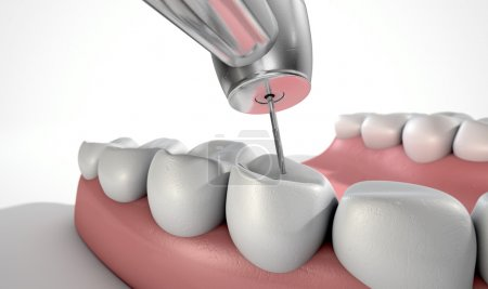 Dentists Drill And Teeth