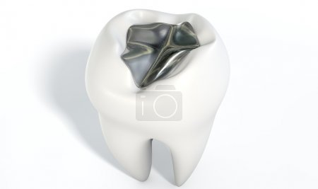 Tooth With Lead Filling