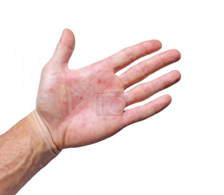 Palm patient erythema in red spots from inflammation